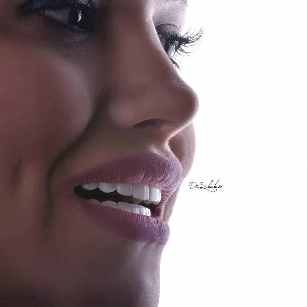 دندانپزشکی زیبایی دکتر شعبانی